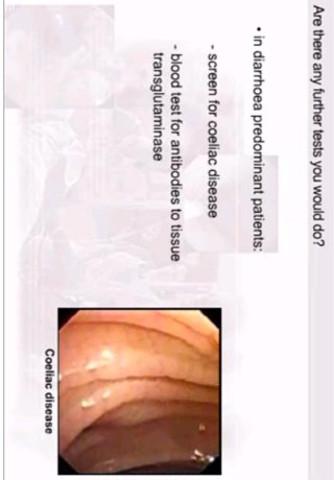 germ cell ovarian cancer symptoms