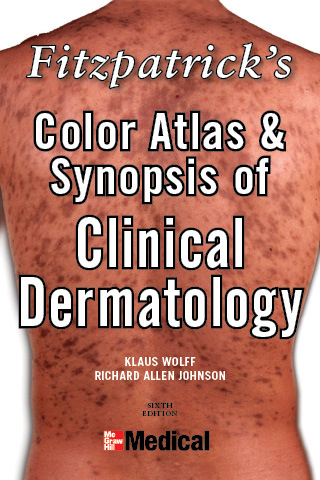 Fitzpatrick's Color Atlas and Synopsis of Clinical Dermatology (8th Edition)