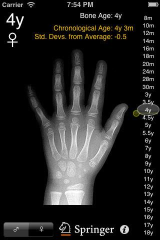 Hand xray anatomy