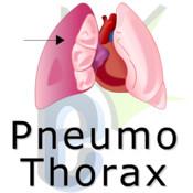 Pnuemothorax