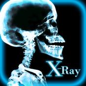 X-Ray Cams Pro
