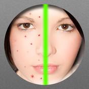 Pimple Remover spyware remover 3 0 2