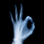 X ray for iPhone