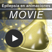 Epilepsia en animaciones global crisis patch