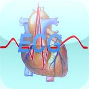 Mastering ECG Arrhythmia