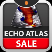Echocardiography Atlas edited by Scott D. Solomon, MD md