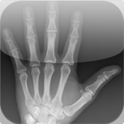 FracturED: A Fracture in the ED; Module 1: Hand and Wrist hand tendon injuries