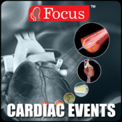 Animated Quick Reference - Cardiac Events