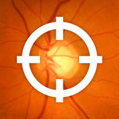 Atlas de Glaucoma iPhone
