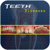 Teeth Diseases v1