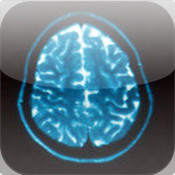 MobileCT – Medical Image Viewer
