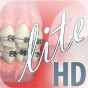 Dentapedia HD (Orthodontics)