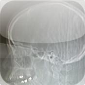 Cool X Rays