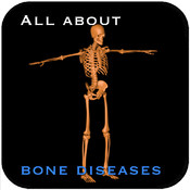 All About Bone Diseases v1
