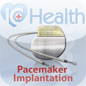 ArchieMD IC Health: Cardiac Pacemaker