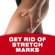 Get Rid Of Stretch Marks proofreader marks